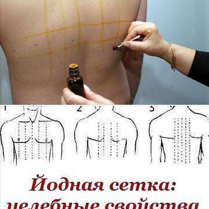 Как делают йодовую сетку